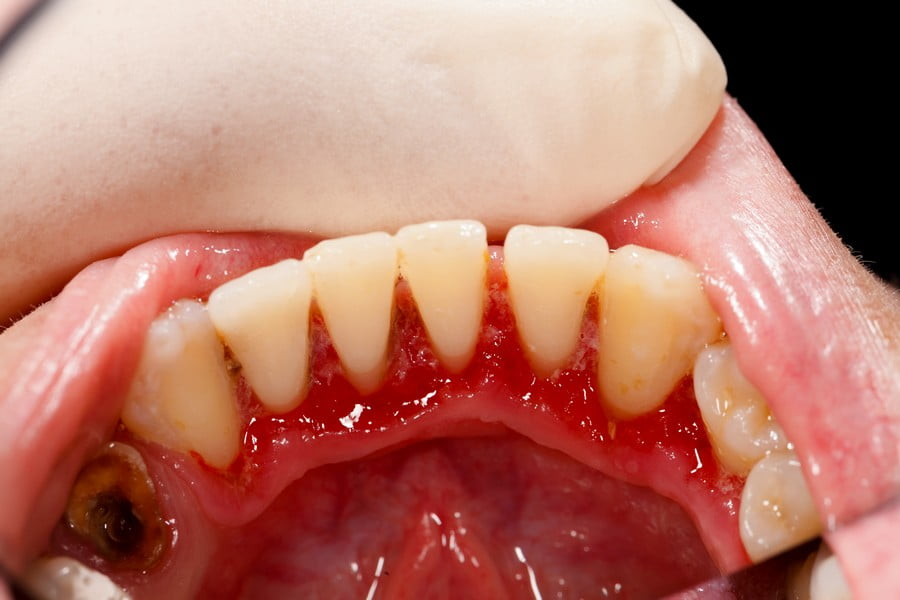 Lower incisors after periodontal treatment - broken tooth with