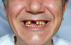 Five Habits that Can Ruin Your Teeth