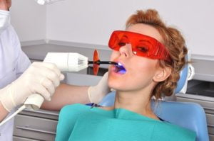 How to Care for Teeth after a Filling