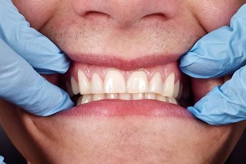 Surgeries to Treat Gum Recession