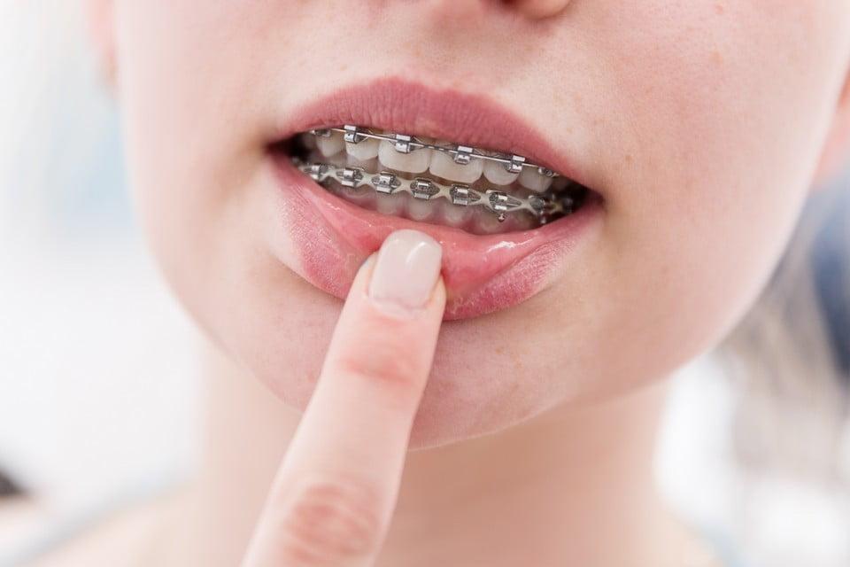 Dental-brace