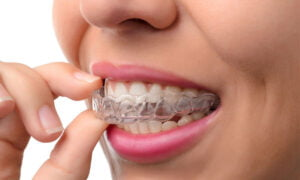 Woman-wearing-a-orthodontic-silicone-trainer-opt