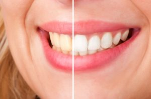 teeth discolouration