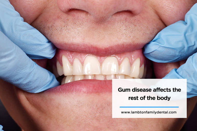 Gum disease affects the rest of the body