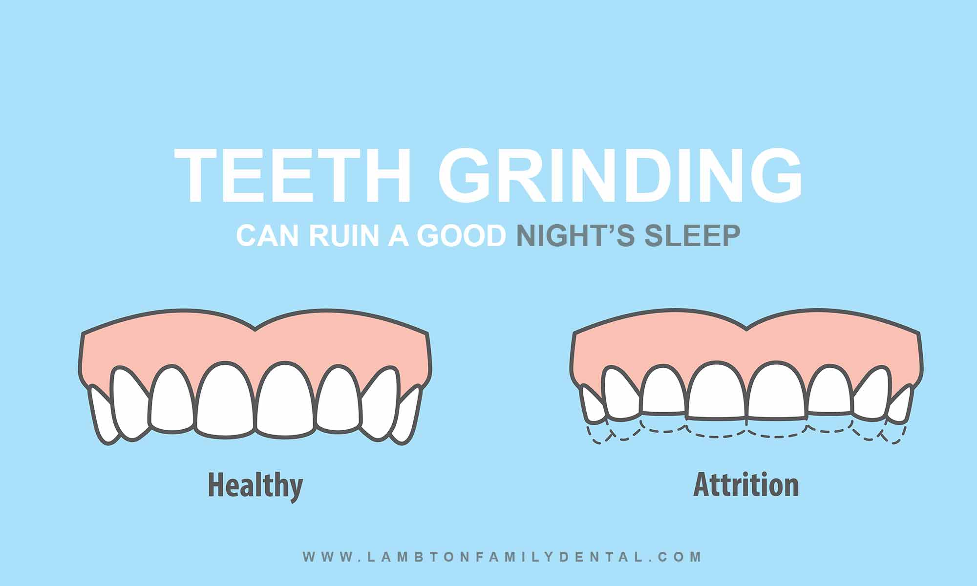 The Nightly Grind: Teeth Grinding Causes, Risks, Cures for Bruxism
