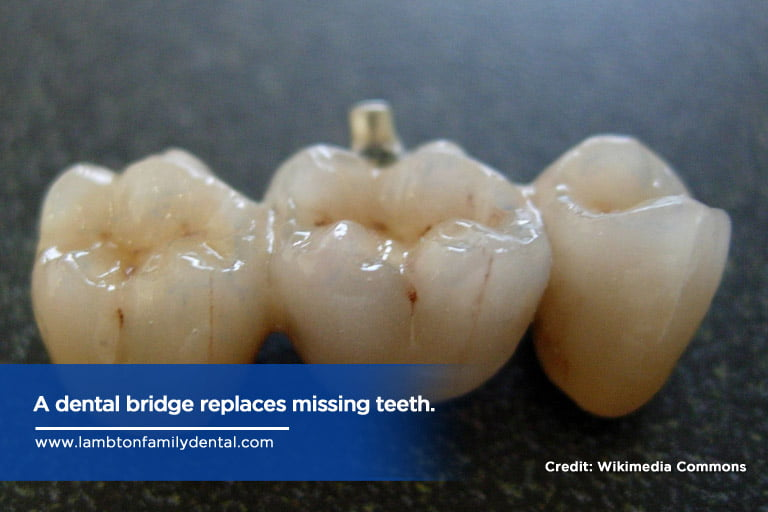 A dental bridge replaces missing teeth.