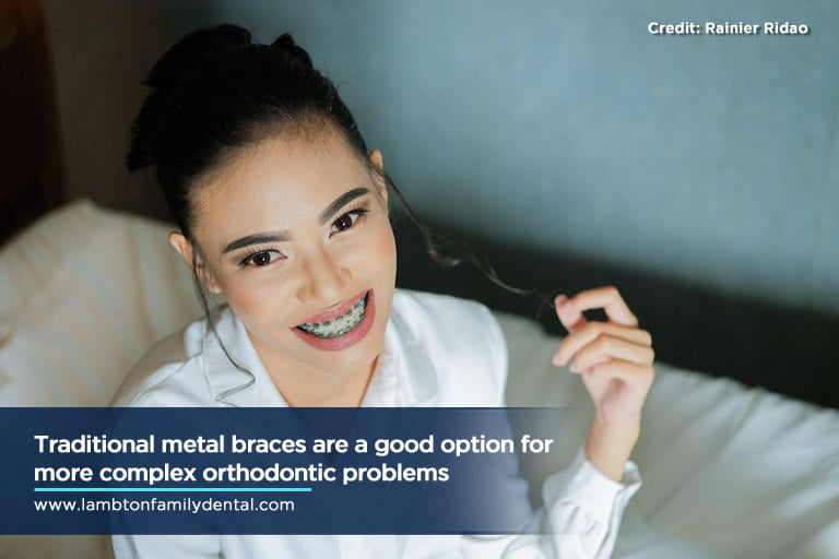 Traditional metal braces are a good option