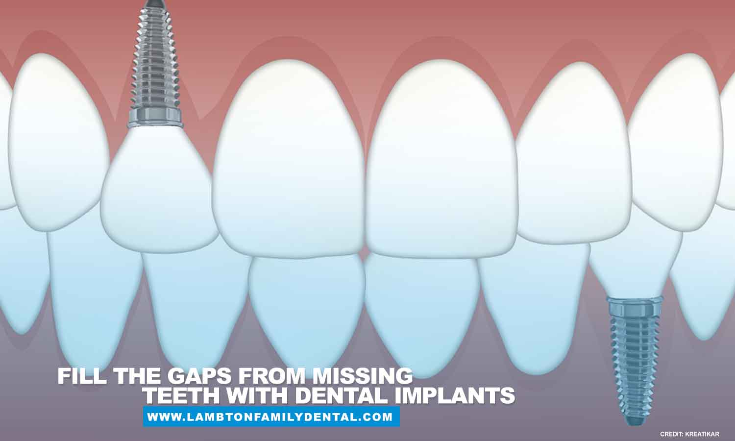 Fill the gaps from missing teeth