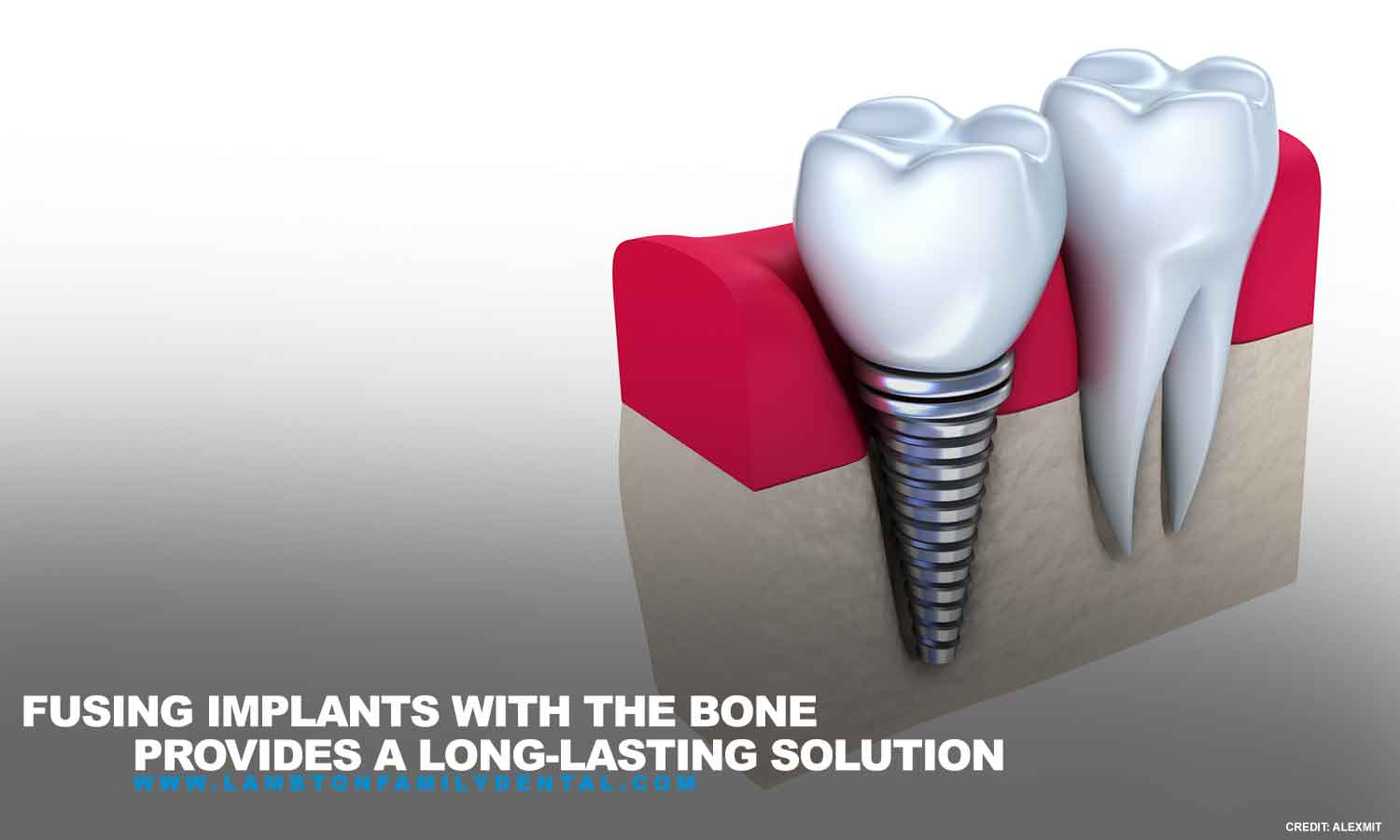 Fusing implants with the bone provides a long-lasting solution