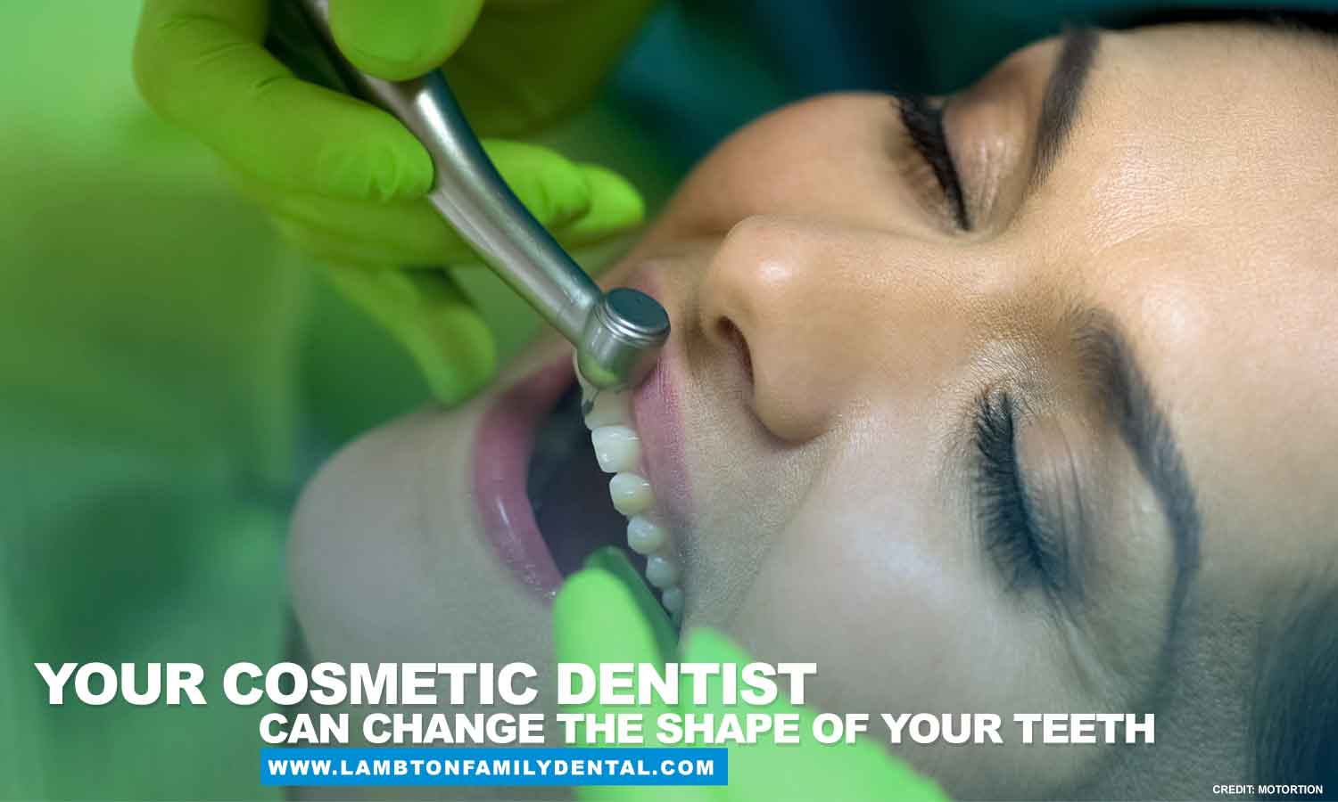 cosmetic dentist can change the shape of your teeth