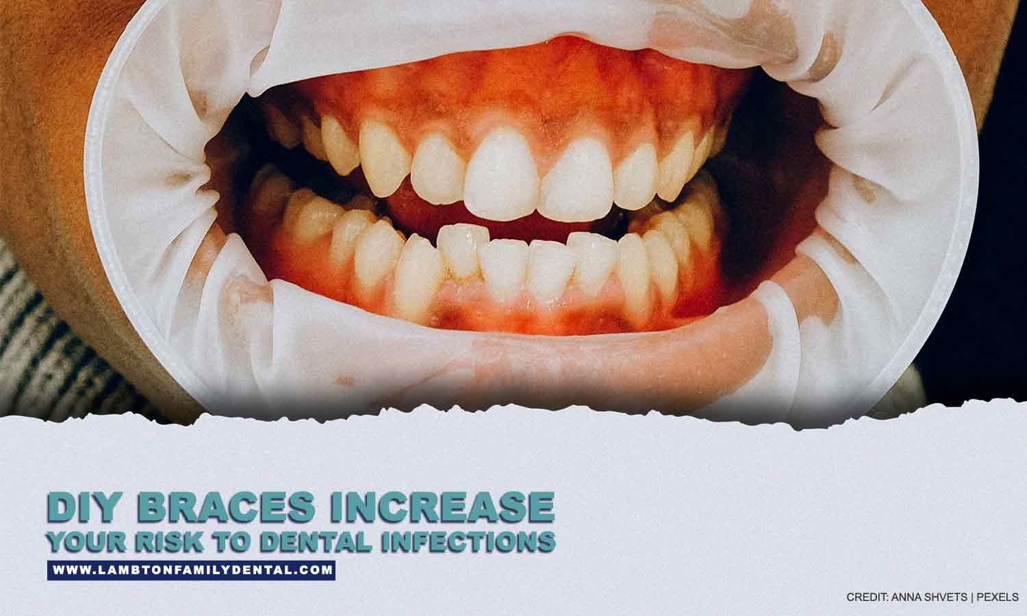 DIY braces increase your risk to dental infections