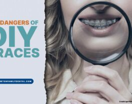 The Dangers of DIY Braces