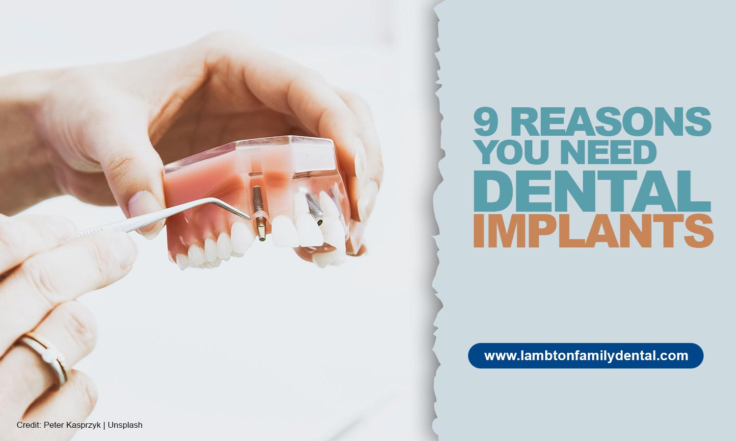 9 Reasons You Need Dental Implants