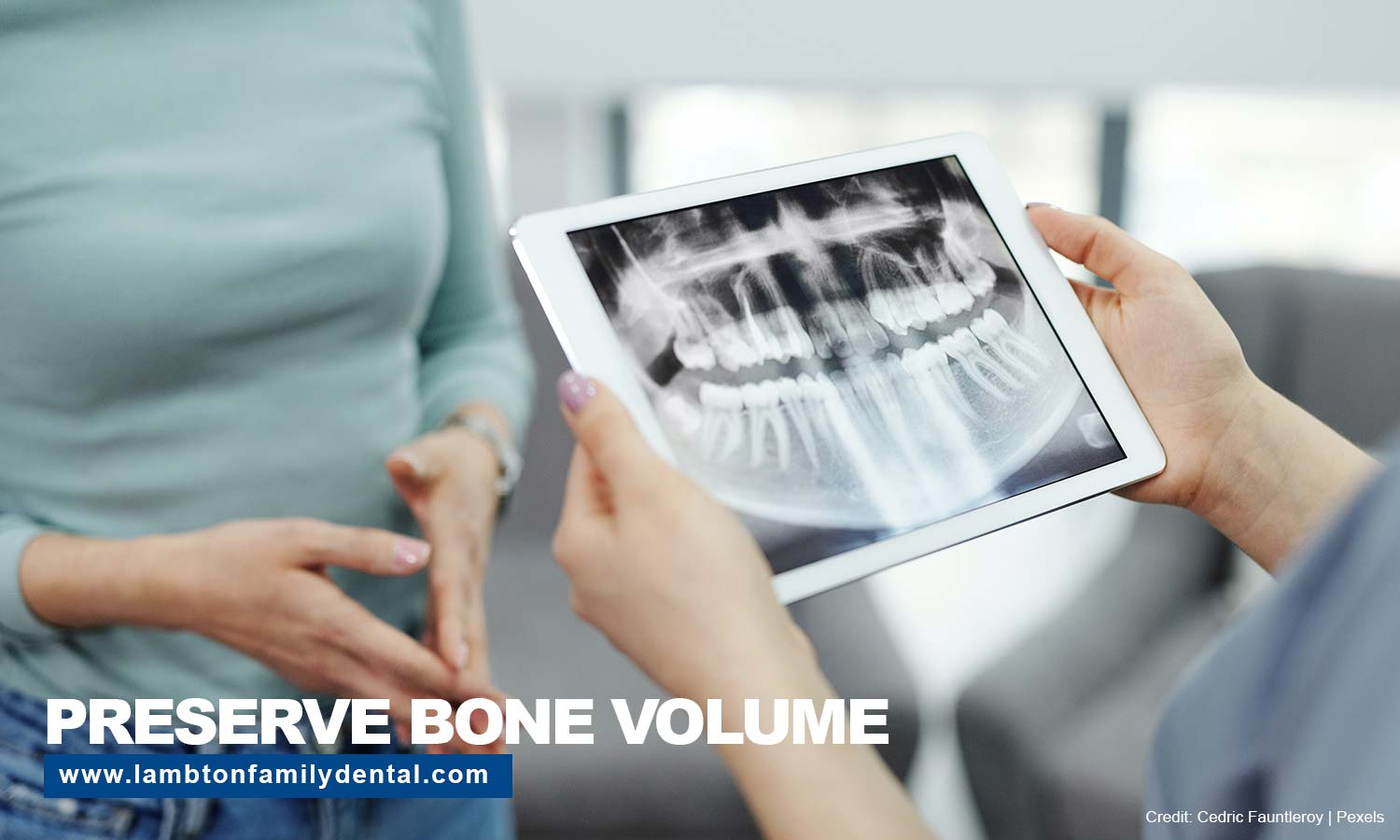 Preserve bone volume