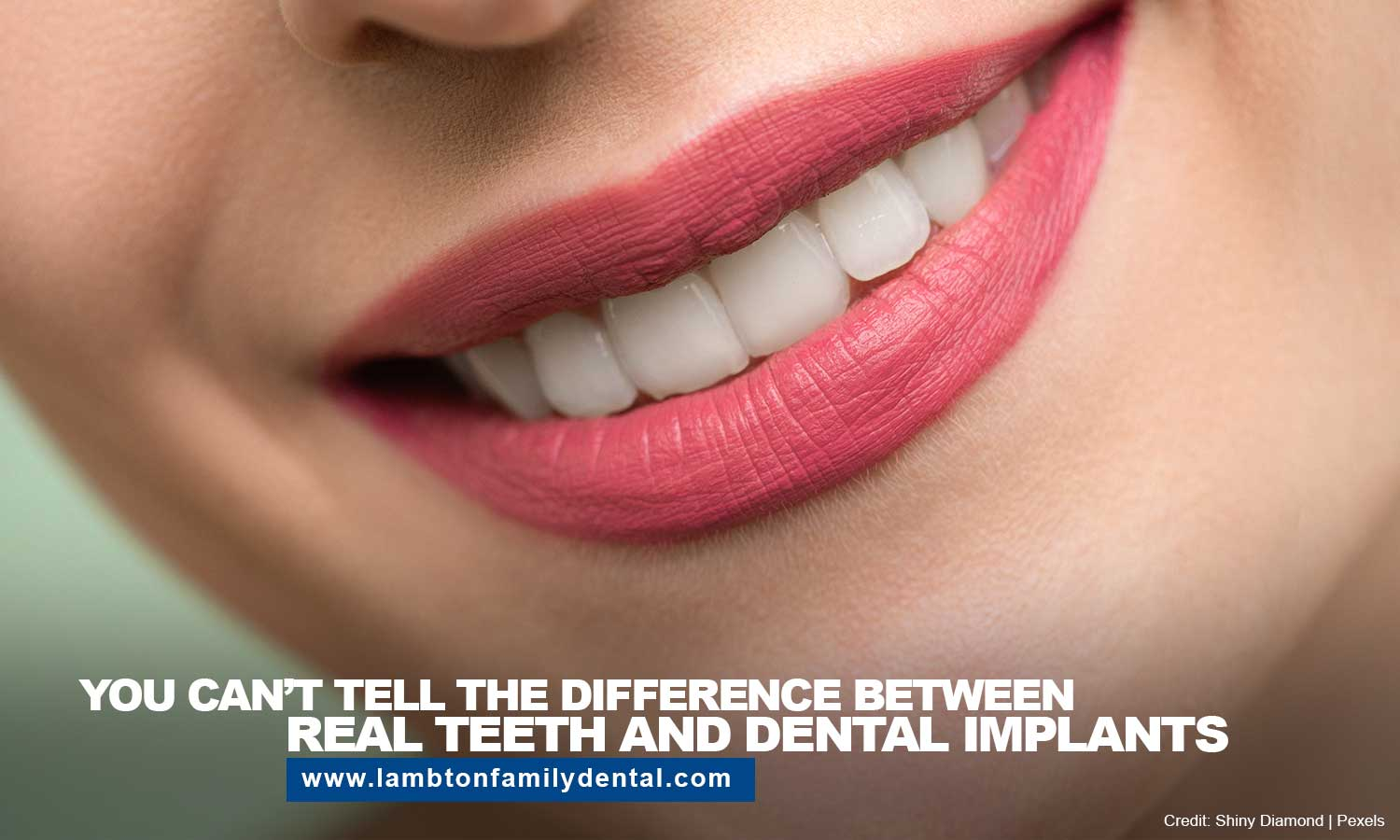 difference between real teeth and dental implants