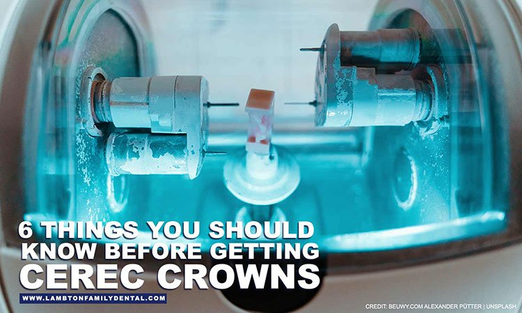 6-Things-You-Should-Know-Before-Getting-CEREC-Crowns-opt