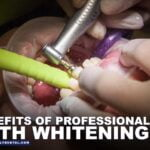 Benefits-Professional-Teeth-Whitening