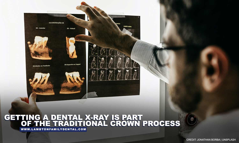 Getting a dental x-ray