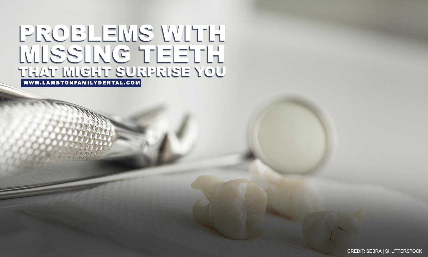 Problems With Missing Teeth