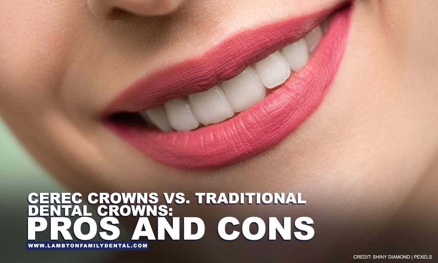 CEREC Crowns vs. Traditional Dental Crowns: Pros and Cons