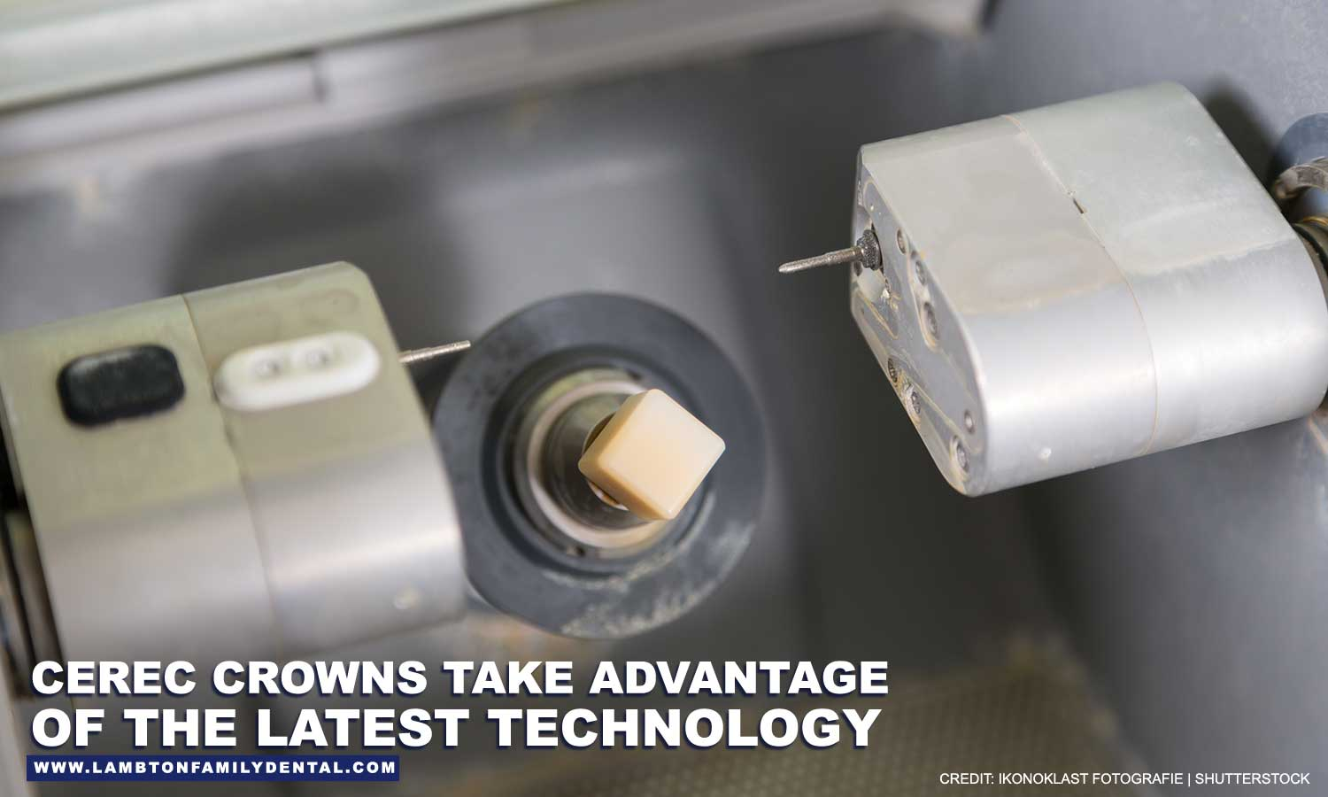 CEREC-crowns-take-advantage-of-the-latest-technology