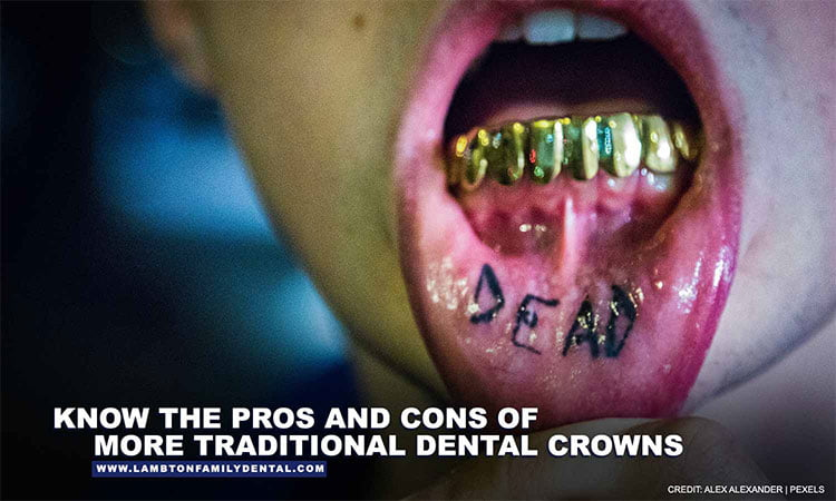 Know-the-pros-and-cons-of-more-traditional-dental-crowns